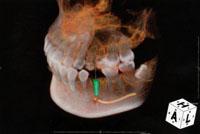 歯科用CT装置